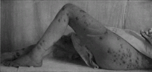 Bromide Eruption Resembling Small-Pox from Materia Medica, 1918