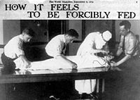 Reporter on Force-Feeding, 1914