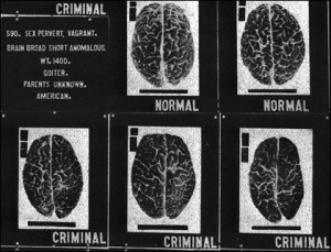 Normal and Abnormal Brains, courtesy U.S. National Library of Medicine