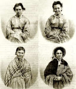 Puerperal Mania in Four Stages, 1858