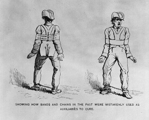 Restraints for Patients, courtesy National Library of Medicine